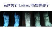 跖跗关节损伤(讲义)
