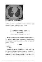 _淋巴瘤化疗相关的间质性肺炎10例报告